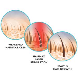hair_follicles_fde2b146-481d-4ee6-969b-ae8e67d1e8c0_400x_crop_center
