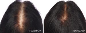 Önce Sonra Saç HairMax