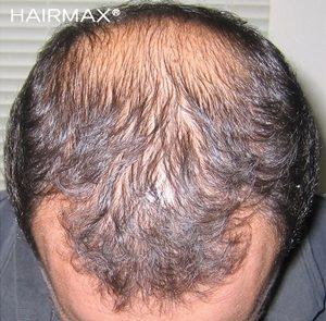 Hairmax Önce Sonra Saç Mor Medikal